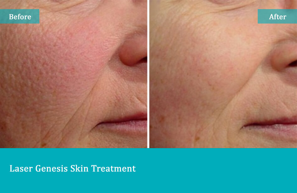Laser Genesis Skin Treatment