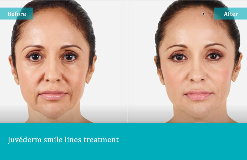 Juvederm Smile Line Treatments