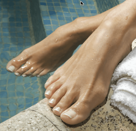 Laser genesis nail fungus treatment